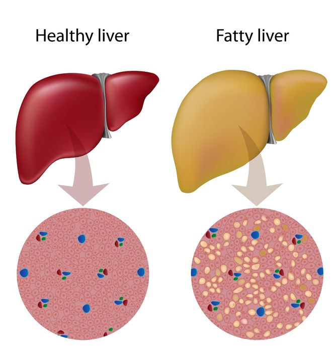 17754258 - fatty liver disease